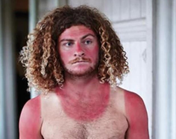 lol funny sunburn