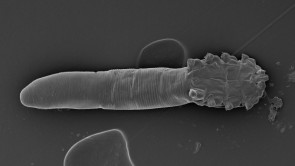 You have face mites.